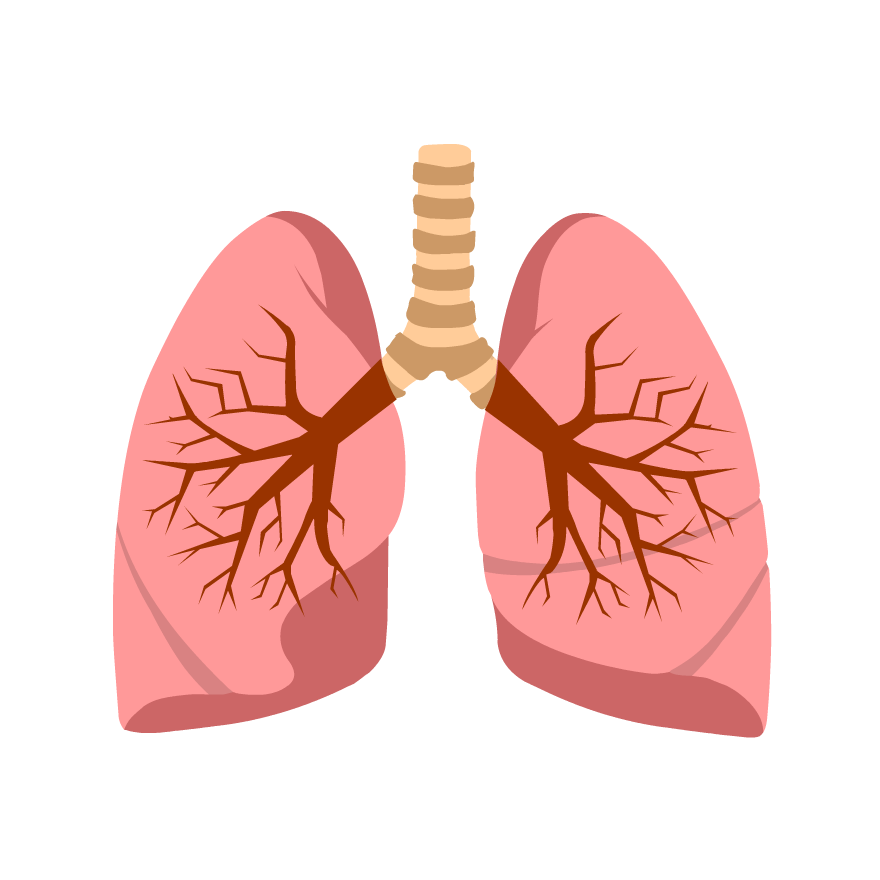 Cystic fibrosis clipart clipart free Cystic Fibrosis - BrainPOP clipart free