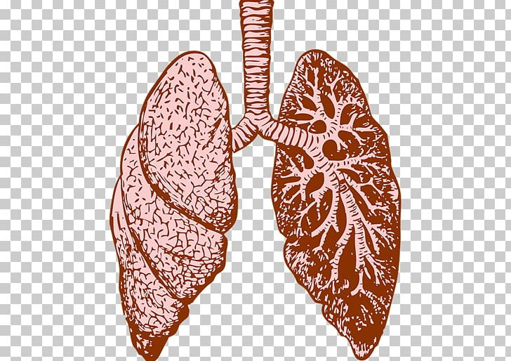 Cystic fibrosis clipart clipart transparent stock Lung Cystic Fibrosis Idiopathic Pulmonary Fibrosis Therapy ... clipart transparent stock