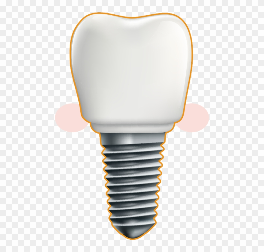 Dental implant clipart free library Dental Implant - Illustration Clipart (#1853806) - PinClipart free library