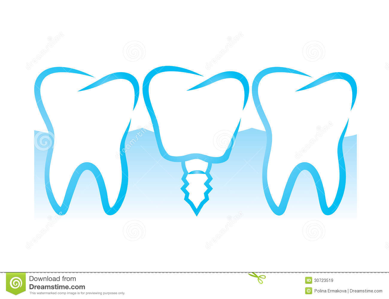 Dental implant clipart svg transparent library Dental Implant Clipart - Free Clipart svg transparent library