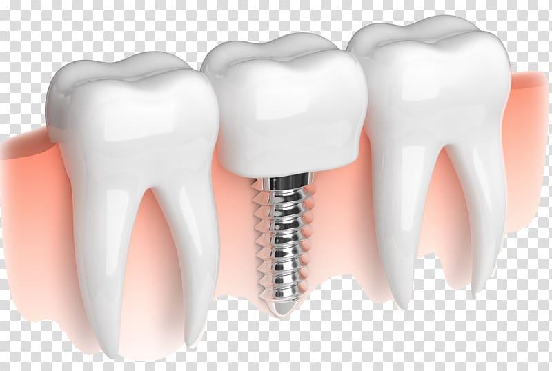 Dissove clipart vector black and white library Dental implant Dentistry Dentures Bridge, Dissolve transparent ... vector black and white library