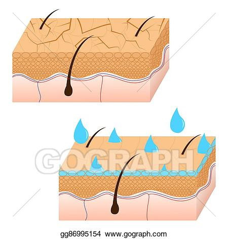 Dry skin clipart png royalty free Vector Art - Skin hydration and dry skin sectional view. Clipart ... png royalty free