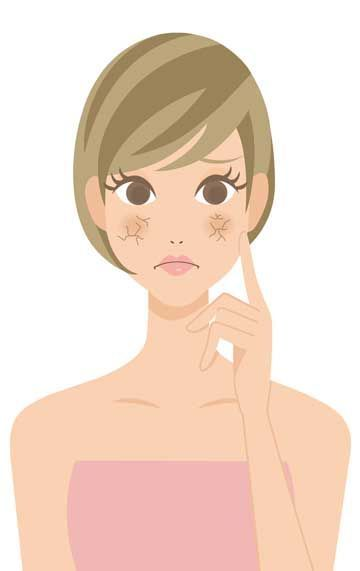 Dryness clipart picture transparent download Is your skin dry? Or dehydrated? What\'s the difference? And what are ... picture transparent download
