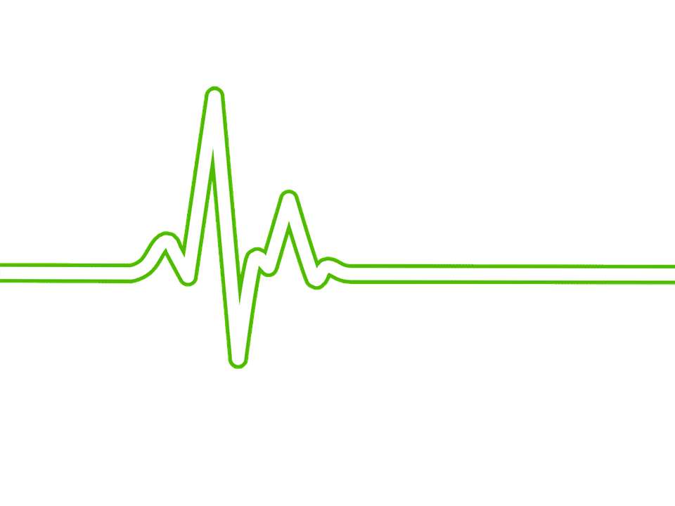 Heart with ekg line clipart jpg free download PNG Ekg Transparent Ekg.PNG Images. | PlusPNG jpg free download