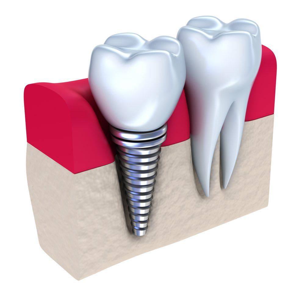 Family bonded cliparts royalty free Dental Implants - Rocklin CA Dentist - Family Dental - Dr. Lee - Dr ... royalty free