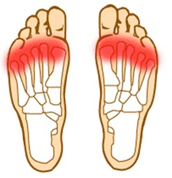 Feet hurt clipart svg download FOREFOOT PAIN | Foot Medical Centre | Aurora Foot Specialist ... svg download