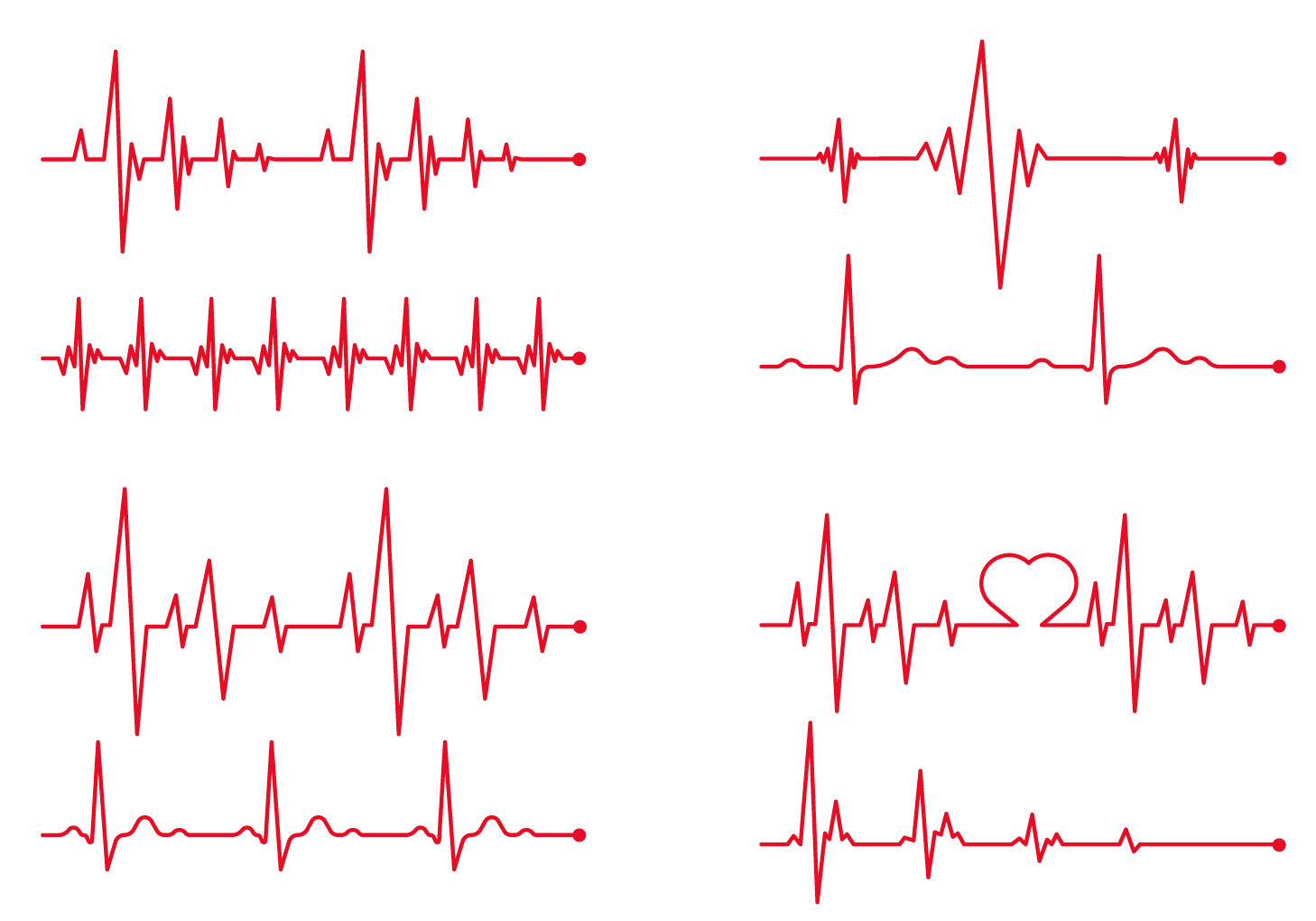 Heart beat line clipart svg royalty free download Heart rate Electrocardiography Clip art - ECG red line Creative 1458 ... svg royalty free download