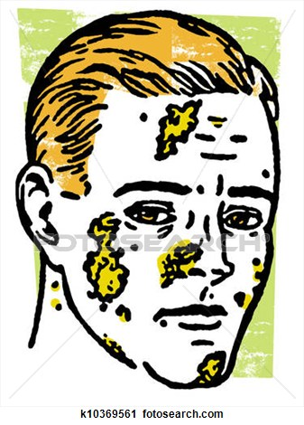 Infected clipart graphic black and white An illustration of an infected | Clipart Panda - Free Clipart Images graphic black and white