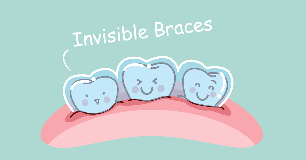 Invisalign logo clipart clipart transparent stock Is Invisalign Teen Right for Your Teenager? | Invisalign Miami clipart transparent stock