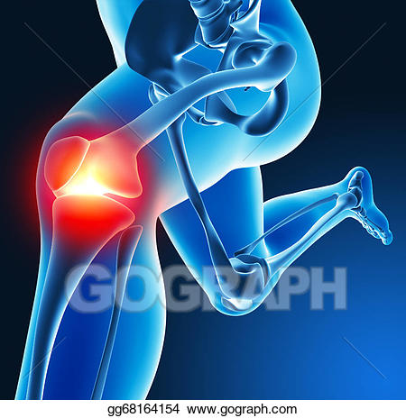 Joint pain clipart banner free download Stock Illustration - Leg joint pain. Clipart gg68164154 - GoGraph banner free download