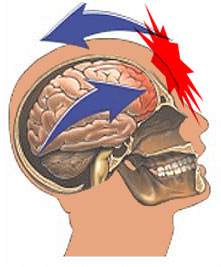 Kids with concussion clipart svg stock Concussions and the NFL | SiOWfa14 Science in Our World: Certainty ... svg stock