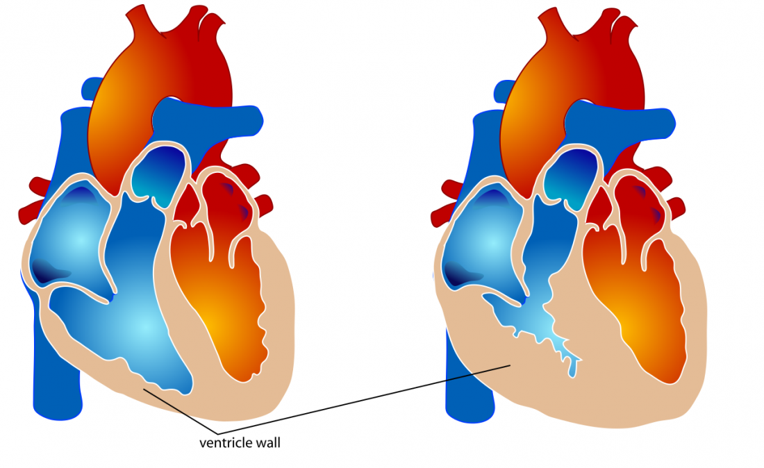 Left ventricle clipart image download Right ventricular hypertrophy: Causes and complications image download