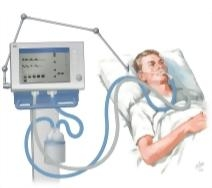 Mechanical ventilation clipart jpg freeuse Welcome To Netter Images jpg freeuse