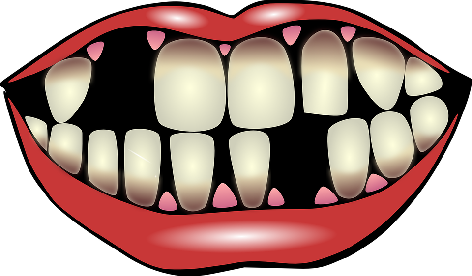Smile missing tooth clipart jpg library stock Why Replace missing teeth? Find out why - Milltown Dental & Implant ... jpg library stock