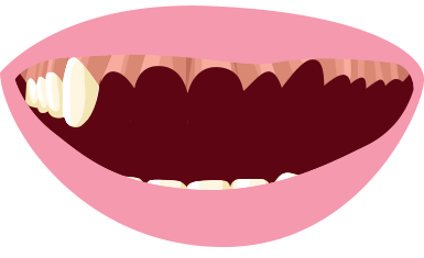 No teeth clipart svg freeuse download Missing teeth clip art clipart images gallery for free download ... svg freeuse download