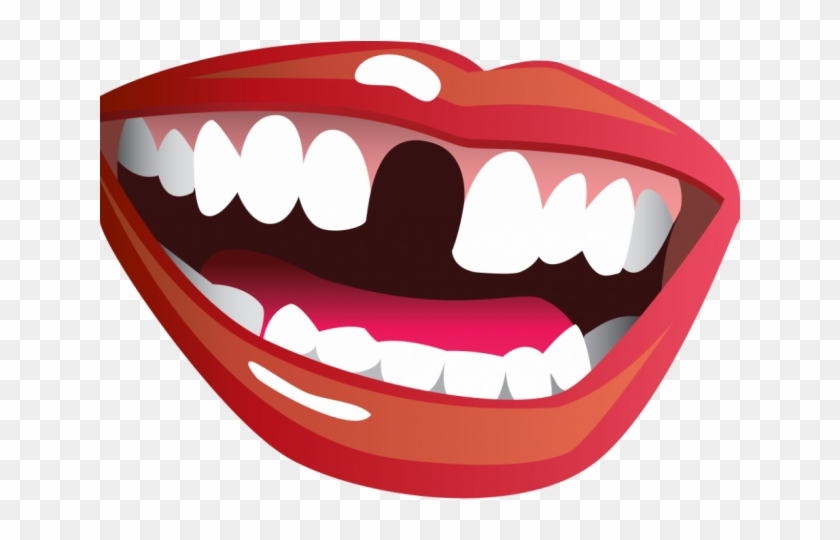Missing tooth clipart vector free Missing Teeth Cliparts - Missing Tooth Clip Art, HD Png Download ... vector free