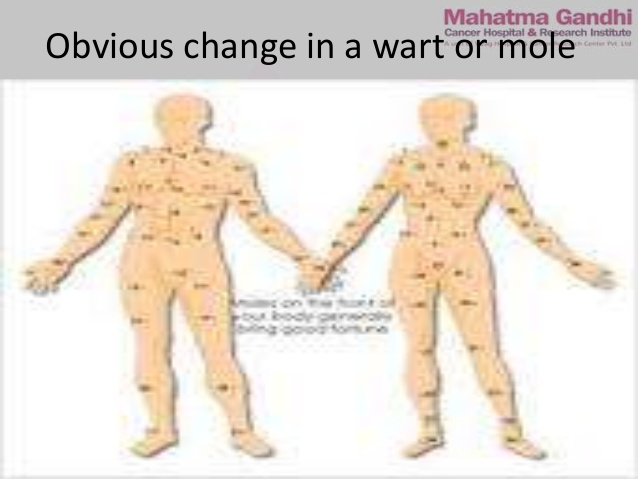 Obvious change in wart or mole clipart svg CANCER AWARENESS svg