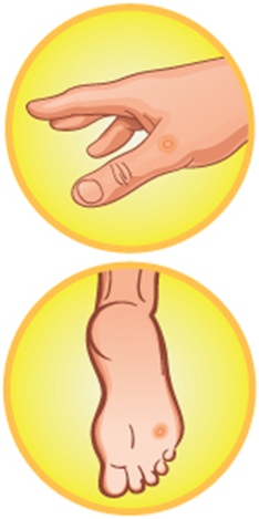 Obvious change in wart or mole clipart picture stock Dr. Scholl\'s Dual Action Freeze Away Wart Remover picture stock