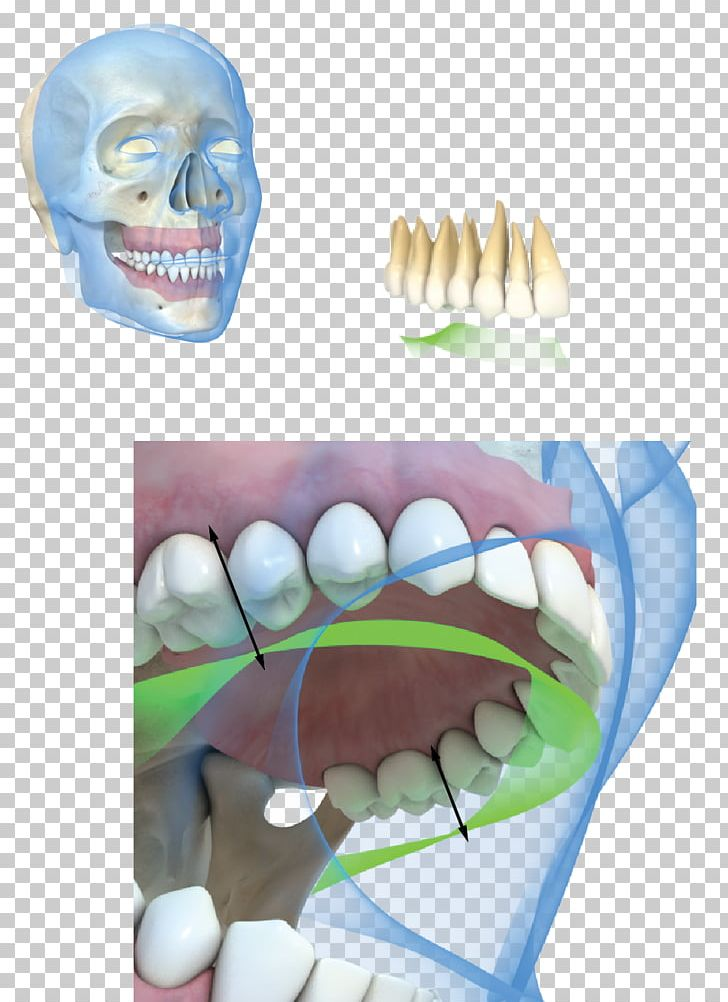 Occlusion clipart image black and white library Tooth Dental Implant Occlusion Gums PNG, Clipart, Black ... image black and white library