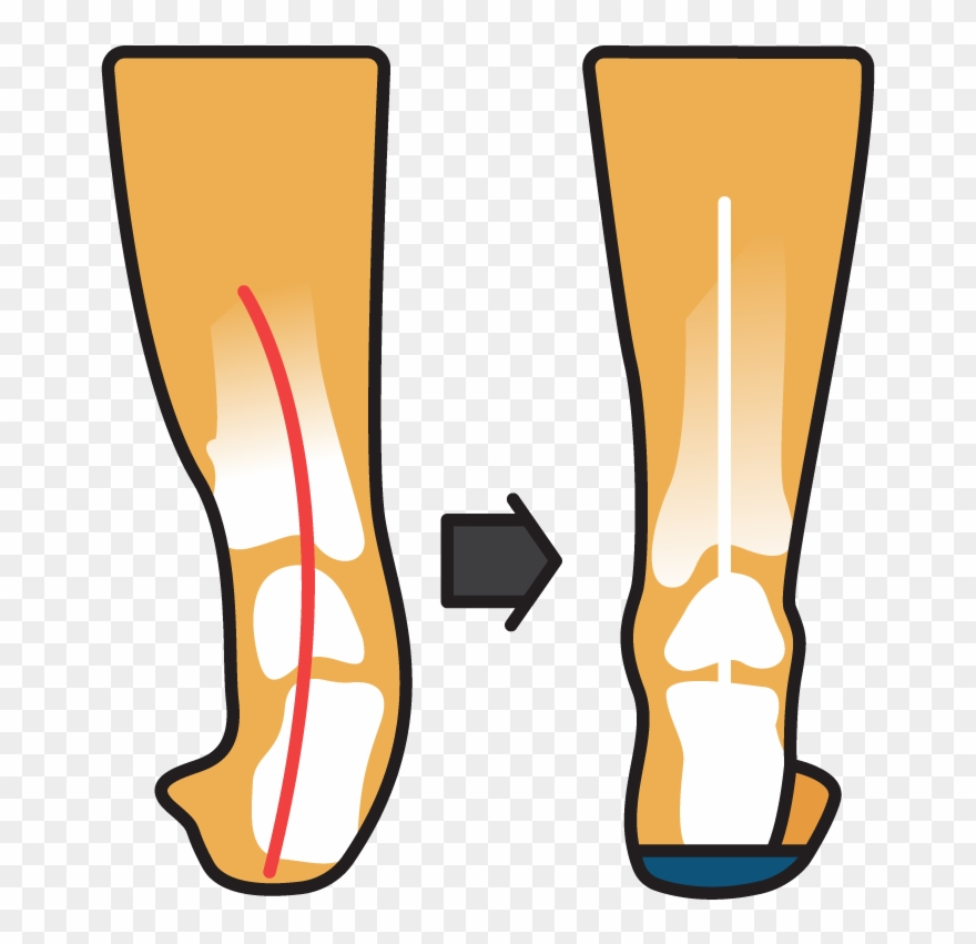 Orthotic clipart vector free library Podsoles Medical Orthotics & Footwear - Medicine Clipart ... vector free library