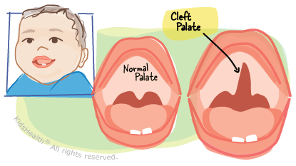Palate clipart transparent Cleft Palate With Cleft Lip (for Parents) - KidsHealth transparent