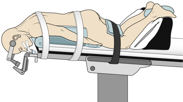 Patient in supine sitting and standing position clipart royalty free library Prone Position - an overview   ScienceDirect Topics royalty free library