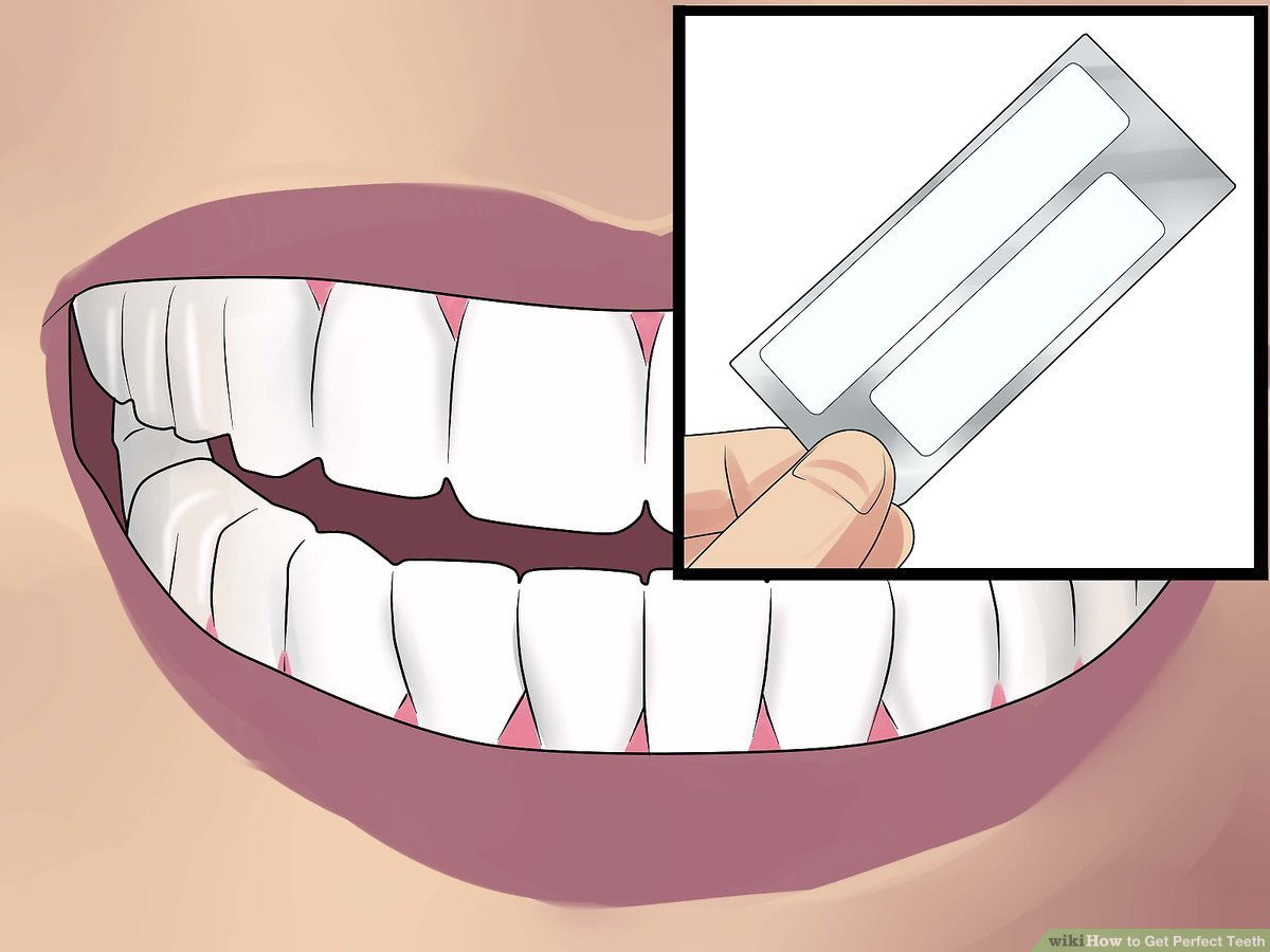 Perfect teeth clipart banner freeuse stock 3 Ways to Get Perfect Teeth - wikiHow banner freeuse stock