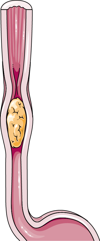 Peristalsis clipart graphic free Peristalsis - Servier Medical Art - 3000 free medical images graphic free