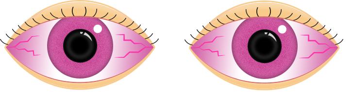 Pink eye clipart freeuse Pink Eye Facts - Eye Department Portland Eye Care & Eyewear freeuse