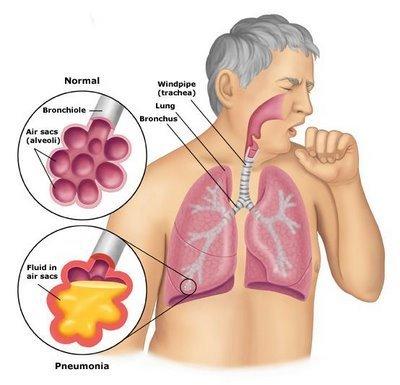 Pnuemonia clipart vector royalty free stock Pneumonia clipart » Clipart Portal vector royalty free stock