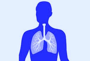 Pnuemonia clipart banner freeuse Free Pneumonia Cliparts, Download Free Clip Art, Free Clip ... banner freeuse