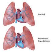 Pulmonary embolus clipart image freeuse stock Pulmonary Embolism Clip Art - Royalty Free - GoGraph image freeuse stock
