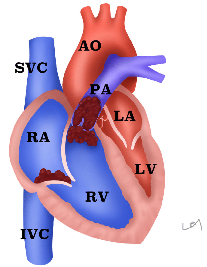 Pulmonary embolus clipart graphic royalty free download Morphological changes of the heart in massive pulmonary ... graphic royalty free download