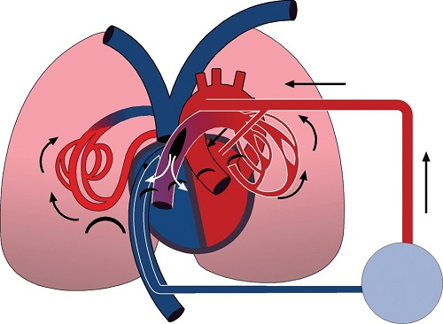 Pulmonary embolus clipart svg library MMCTS - Retrograde pulmonary perfusion as an adjunct to ... svg library