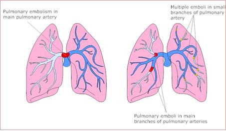 Pulmonary embolus clipart png transparent Pulmonary Embolism l Diagnosis l Basic Testing l Treatment png transparent