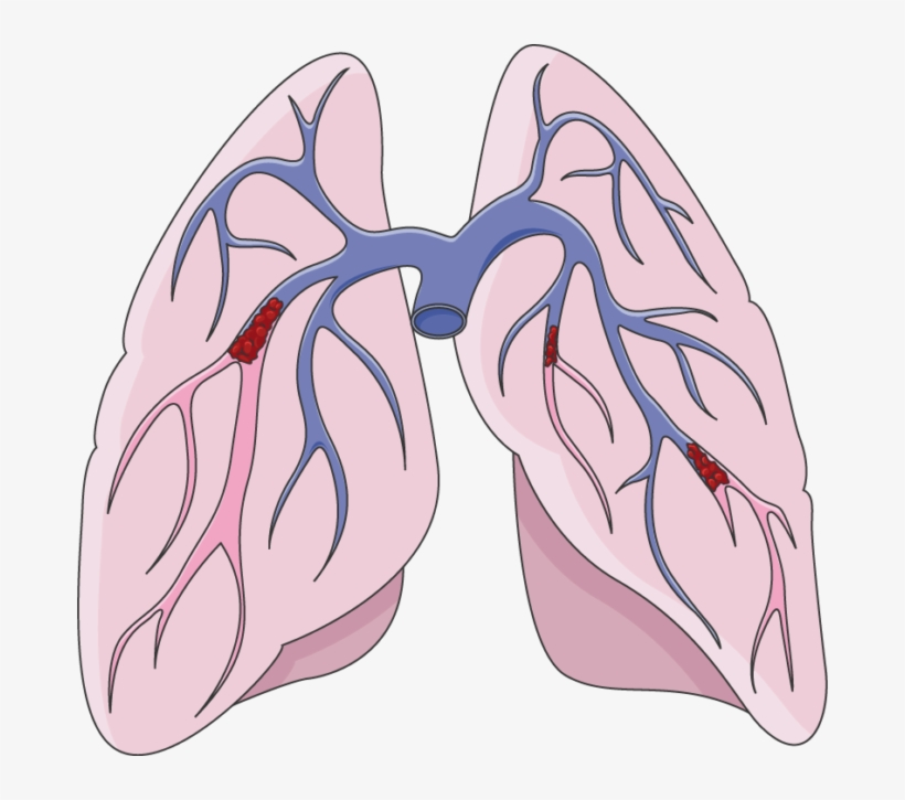 Pulmonary embolus clipart clip art free stock 680 X 645 1 - Pulmonary Embolism Clip Art Transparent PNG ... clip art free stock