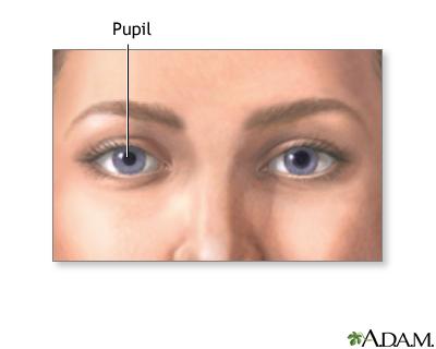 Pupil size clipart freeuse Normal pupil: MedlinePlus Medical Encyclopedia Image clipart freeuse