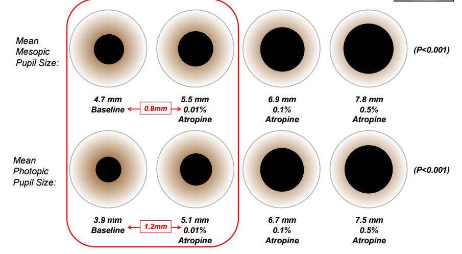 Pupil size graphic free stock Atropine and Myopia Control: The ATOM 2 Study - Eyedolatry graphic free stock