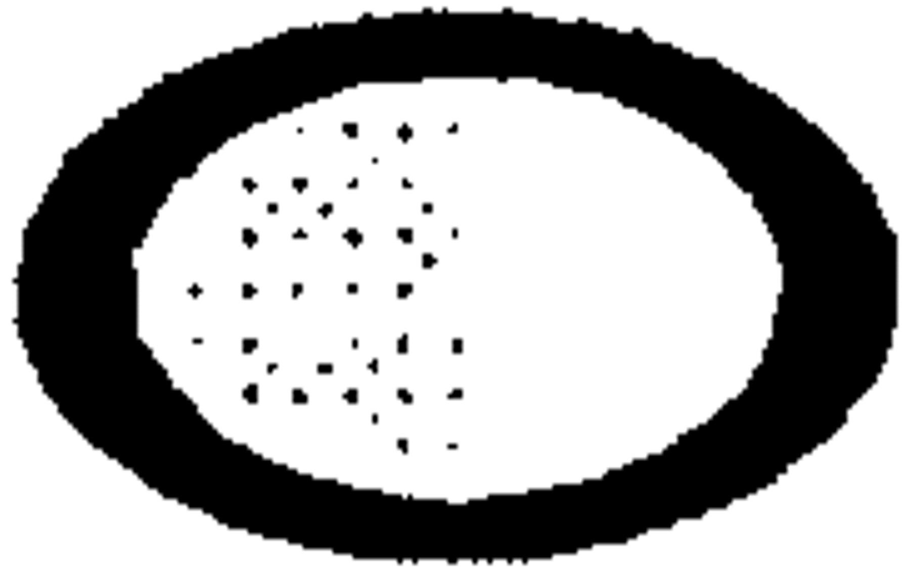 Quarter circle arrow clipart clip library Familial Hypercholesterolemia in the Finnish North Karelia ... clip library