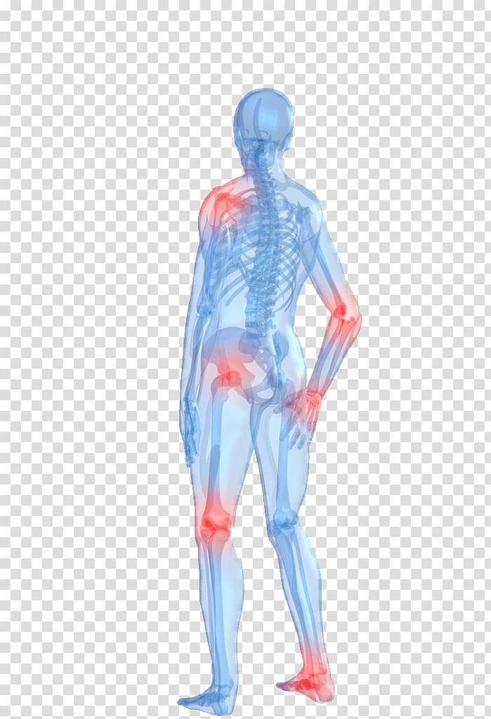 Rheumatoid arthritis clipart clip transparent download Arthritis pain Human body Rheumatoid arthritis Joint pain ... clip transparent download