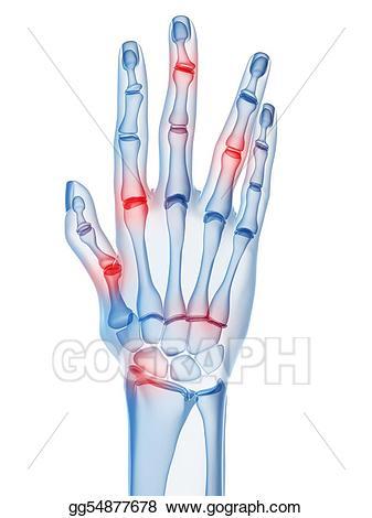 Rheumatoid arthritis clipart png transparent download Drawing - Arthritis. Clipart Drawing gg54877678 - GoGraph png transparent download