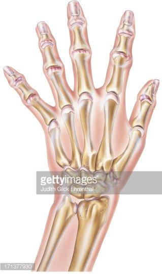 Rheumatoid arthritis clipart black and white Hand Rheumatoid Arthritis of The Joints stock vectors ... black and white