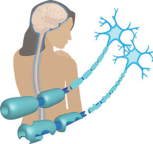 Sclerosis clipart image stock Multiple Sclerosis | Benaroya Research Institute image stock