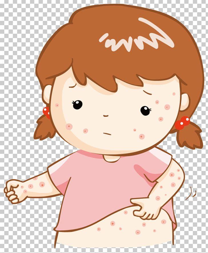 Skin rash clipart jpg free stock Miliaria Stock Photography Skin Rash PNG, Clipart, Blister ... jpg free stock