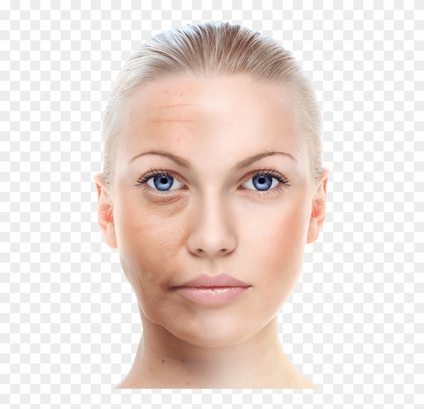 Skin wrinkles clipart graphic free library Remove Wrinkles - Skin Whitening Cream In Nepal, HD Png ... graphic free library