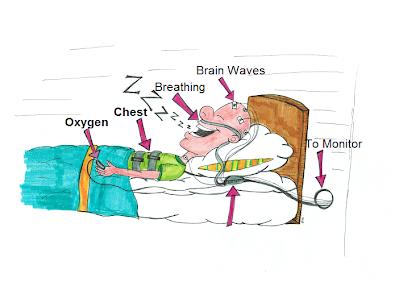 Sleep lab clipart clip art free stock OSA -Sleep Study-Cpap. - Ez Sleep 4 u clip art free stock