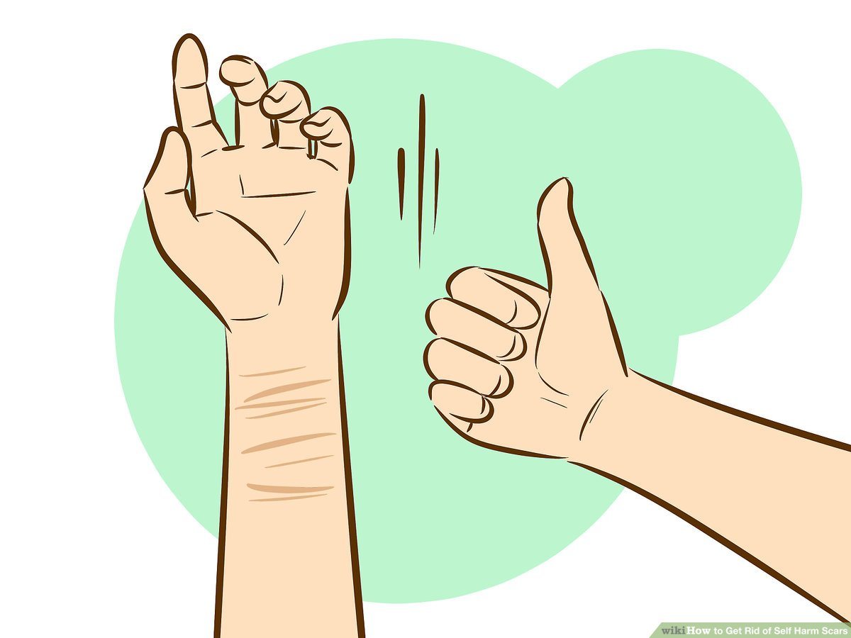 Slef-hurting clipart image transparent stock 6 Ways to Get Rid of Self Harm Scars - wikiHow image transparent stock