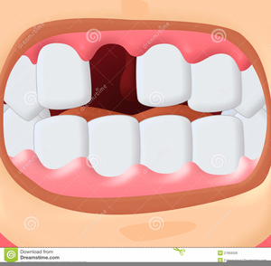 Smile missing tooth clipart png free library Smile With Missing Teeth Clipart | Free Images at Clker.com ... png free library