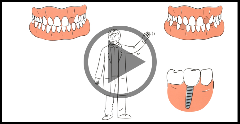 Smile missing tooth clipart picture freeuse download Single Missing Tooth | Dental Implants | Dentist Evesham picture freeuse download