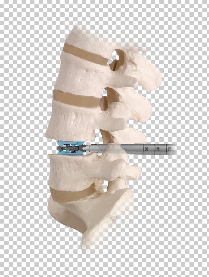 Spinal decompression clipart jpg freeuse download Spinal Fusion Vertebral Column Spinal Decompression Human ... jpg freeuse download